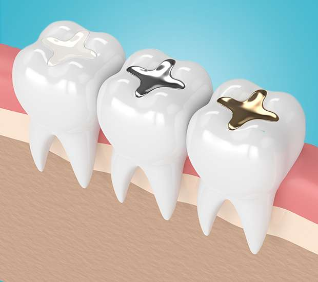 Stamford Composite Fillings