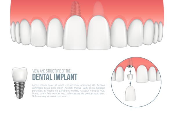 Benefits Of A Dental Implant From A Cosmetic Dentist